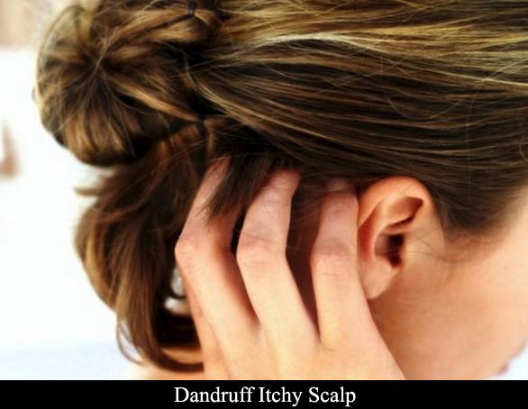 Dandruff itchy scalp